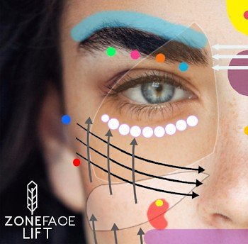 Zone Face Lift. Zone Face Lift